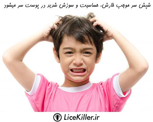 خطرات عدم درمان شپش سر